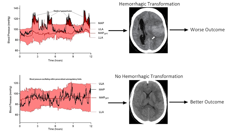 Diagram comparing brain scans with and without evidence of hemorrhagic transformation.