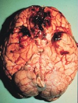 photo of human brain with blood clots